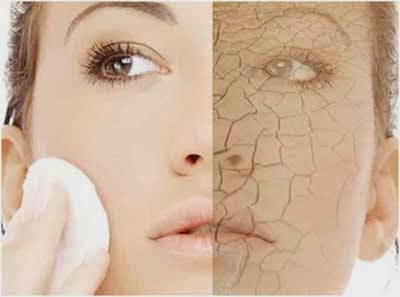 http://www.funmag.org/health-and-beauty-tips/dry-skin-remedies/