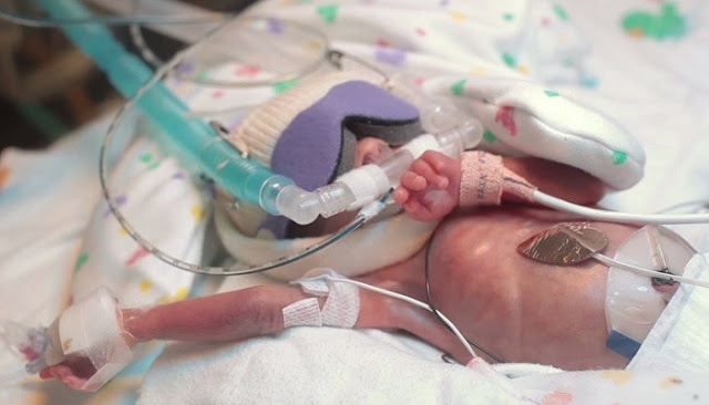 This Little Baby Was Almost Dying, How He Survived Is Truly Heart Melting
