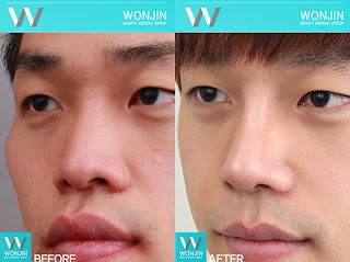 foto sebelum dan sesudah operasi plastik hidung-4
