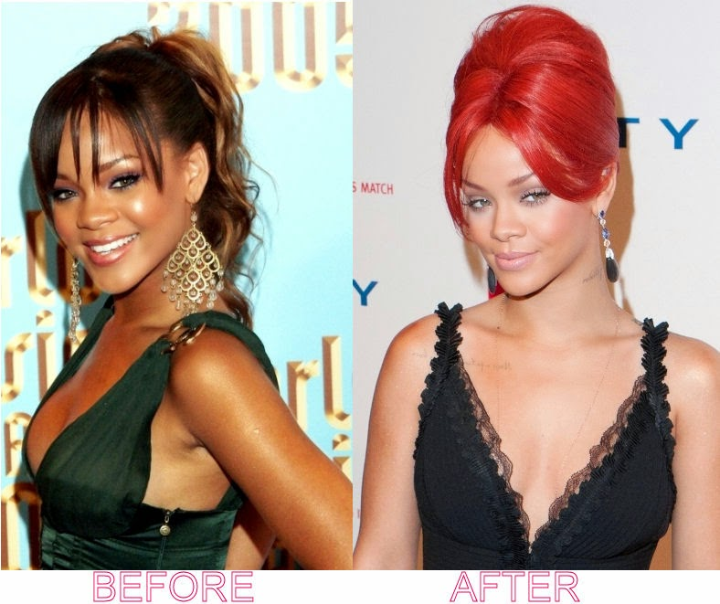 before after Rihanna plastic surgery