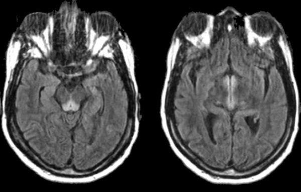 neuroradiology cases  wernicke u0026 39 s encephalopathy mri