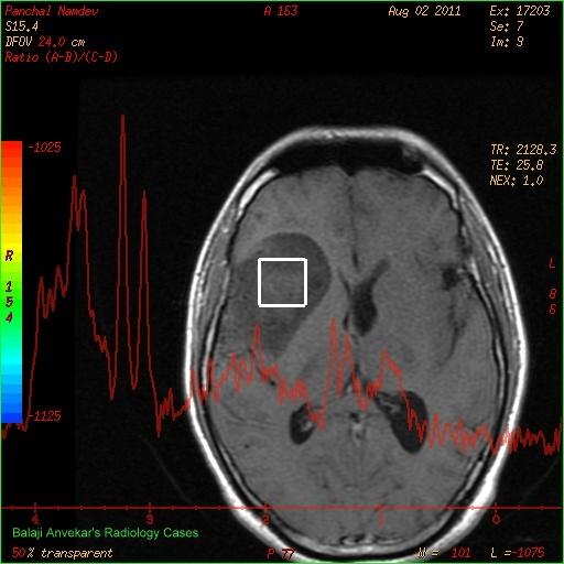 Dr Balaji Anvekars Neuroradiology Cases