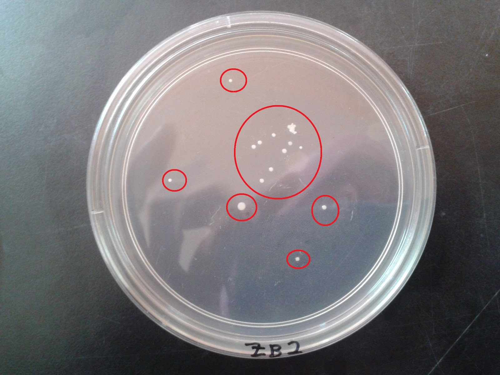 lab 1 ubiquity of microbes 1 Ubiquity of microorganisms lab report - get started with term paper writing and compose greatest term paper ever find main advice as to how to receive the greatest research paper ever writing a custom research paper is go through a lot of steps.