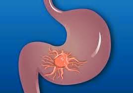 Obat penyakit tumor lambung alami