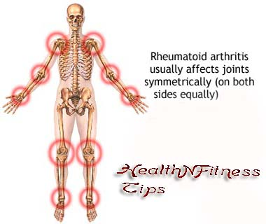 Health Tips to Identify the Psoriatic Arthritis