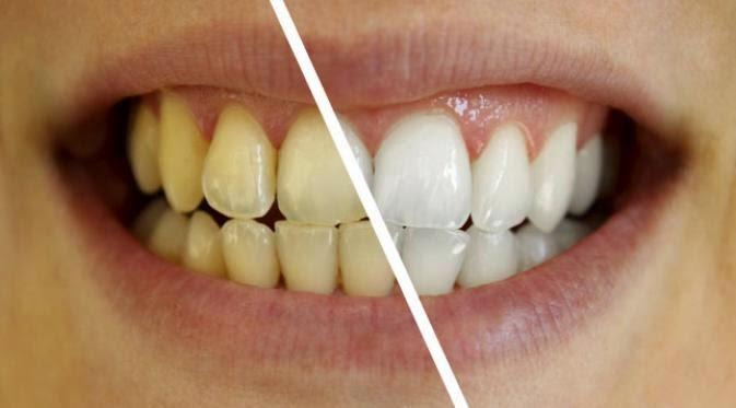 Tips memutihkan Gigi Dengan Cepat