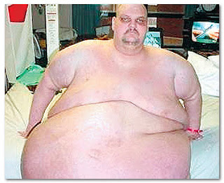 Heaviest Man In The World - Patrick D. Deuel