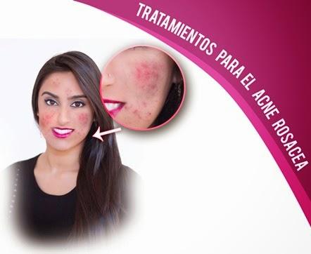 remedios caceros para el acne rosacea