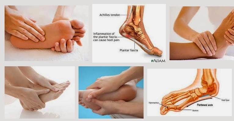 Đau bàn chân khi chơi tennis có nguy cơ đau chân