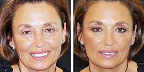 maquillaje antes despues mujer madura