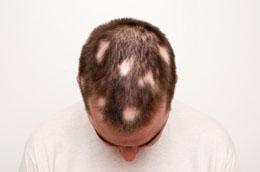 تساقط الشعر الجزئي