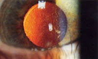 After cataract - Posterior capsular opacification post-cataract surgery(seen on retroillumination)