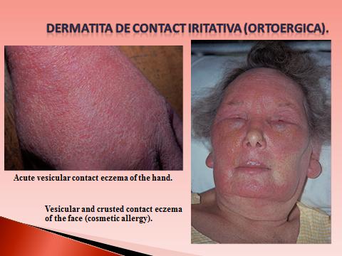 poliartrita reumatoida cauzele primului