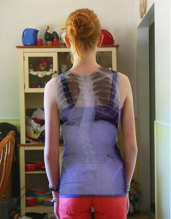 Epic Spinal X-Ray Dress.
