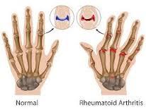 Cara Menyembuhkan Artritis Reumatoid