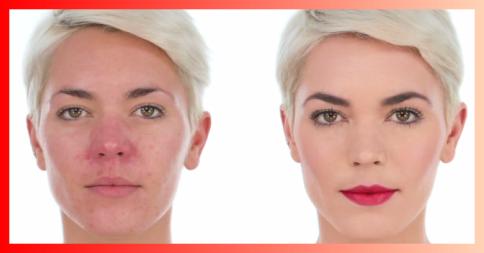 Prévia do vídeo que ensina a maquiar a pele avermelhada.