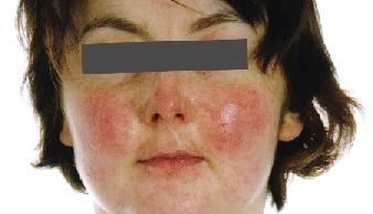 Kako prepoznati i razumjeti Lupus Erythematosus? Ima li lijeka? | Dva