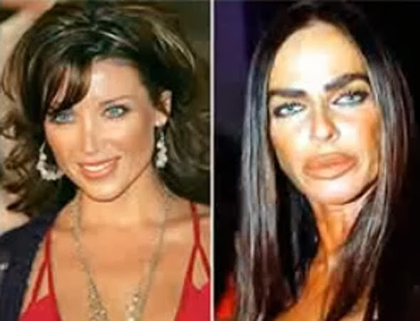 Celebrity Before And After Plastic Surgery Disasters ...
