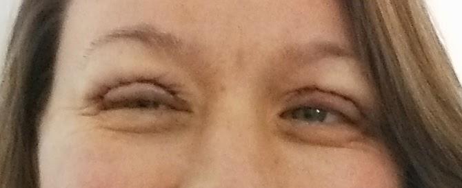 hævede øjenlåg efter gråd