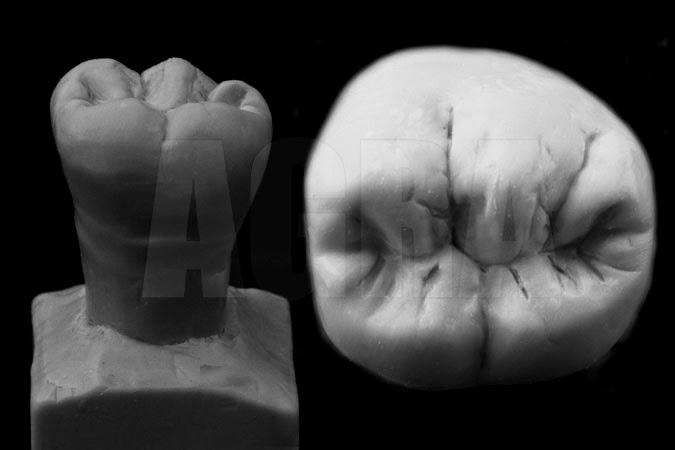 Método Geométrico 1o Molar Inferior | Sobre Dentística