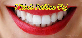 9 teknik putihkan gigi
