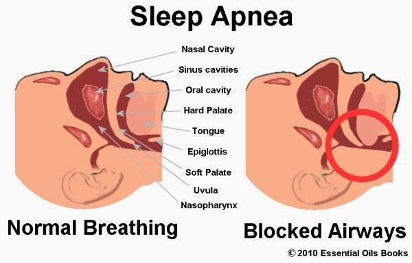 Apnea Sleep Symptoms