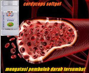 obat pembuluh darah tersumbat / bronchitis