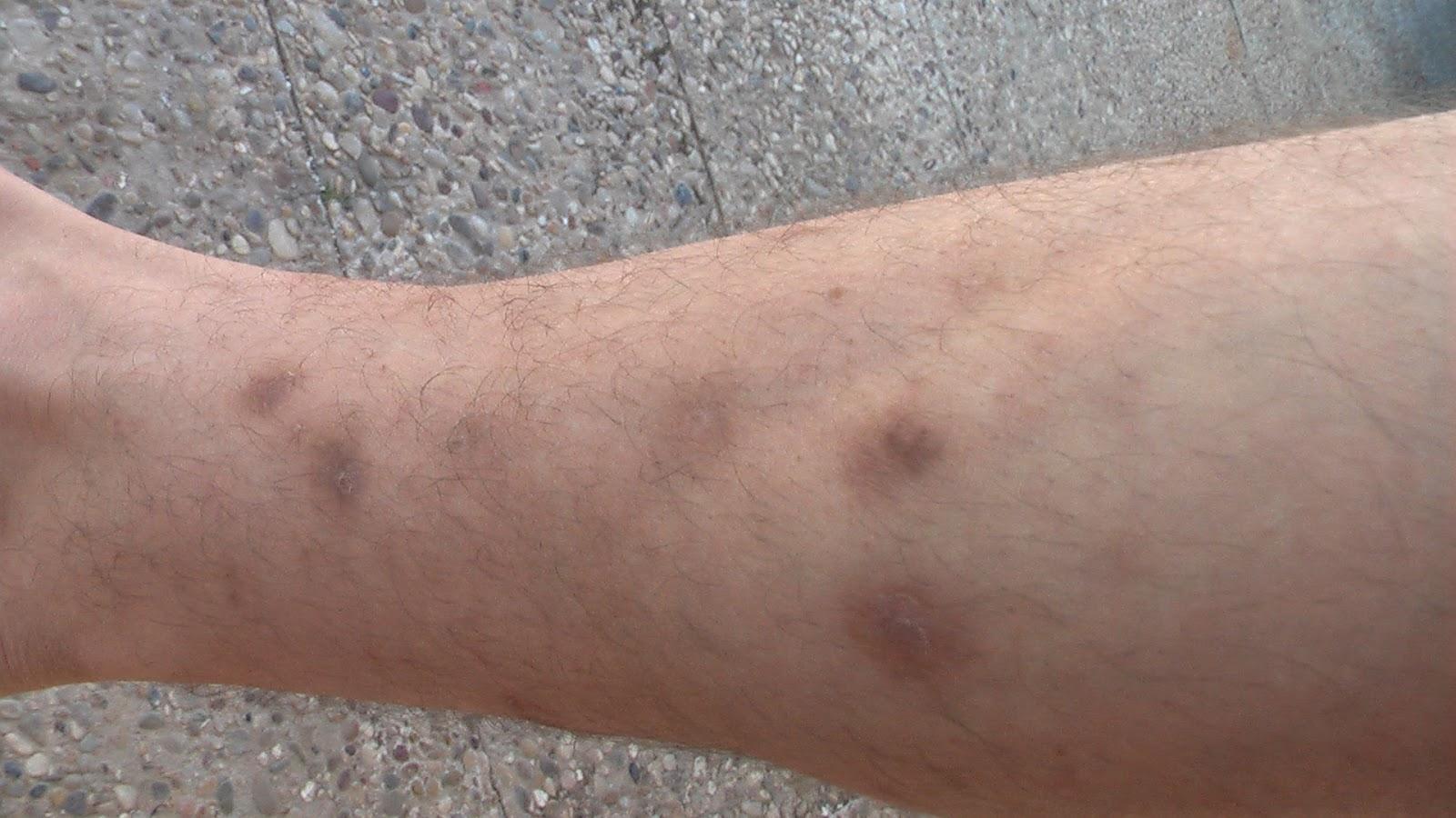 La patogenía gerpetiformnoy las eccemas kaposhi