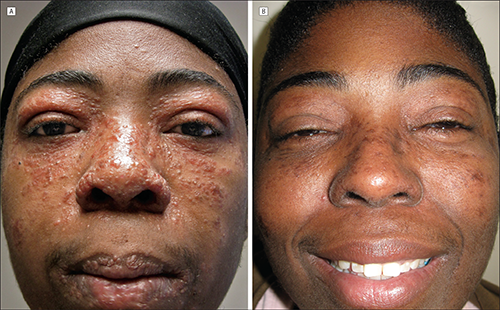 Black woman with Lupus