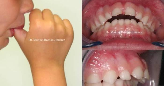 Deje de chuparse el dedo y natural