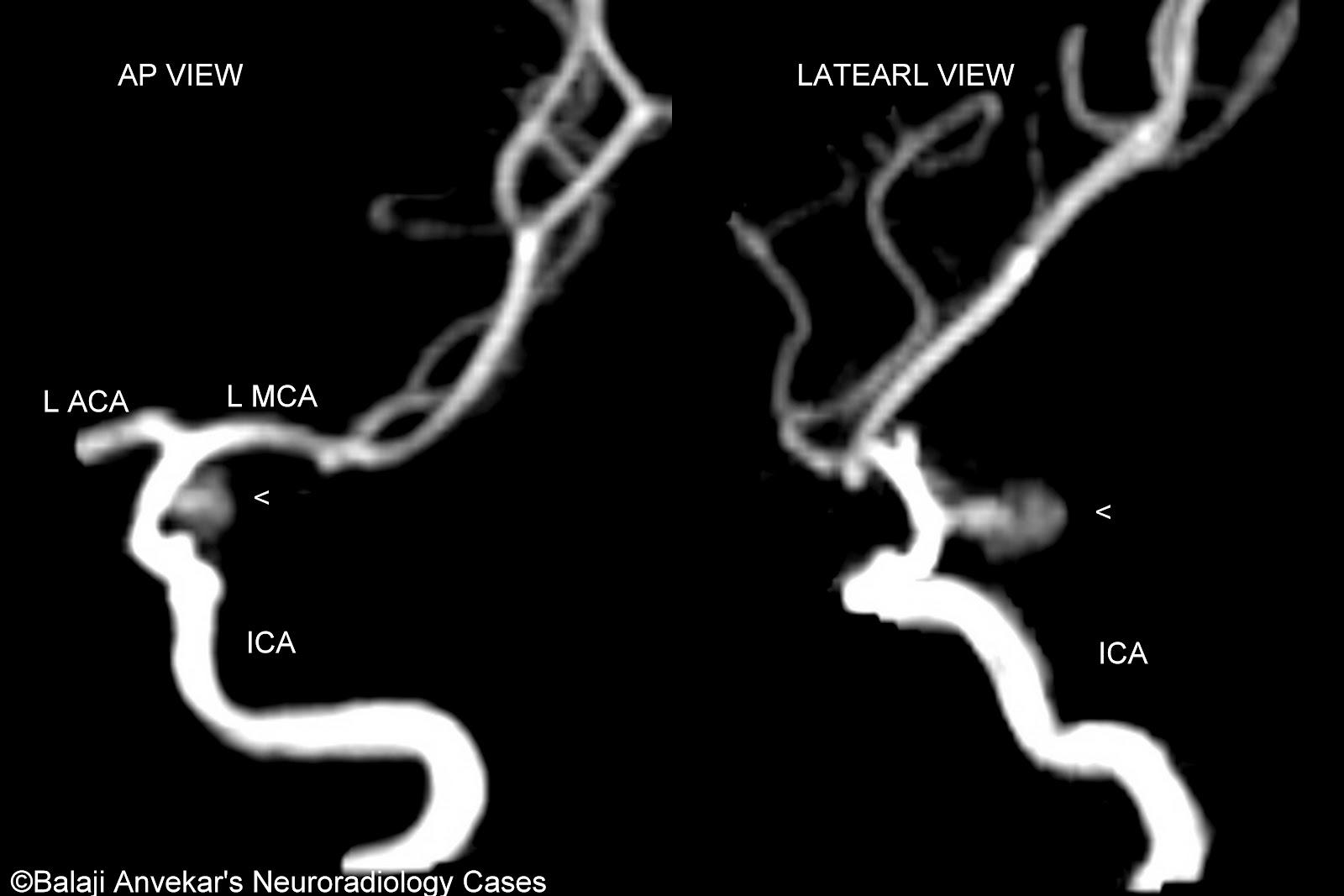 Neuroradiology Cases: Aneurysmal 3rd CN palsy