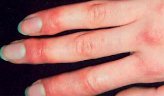 Las extremidades inferiores frías a la trombosis