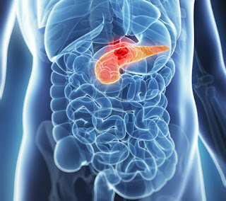 Drug Combination Shows Promise Against Pancreatic Cancer