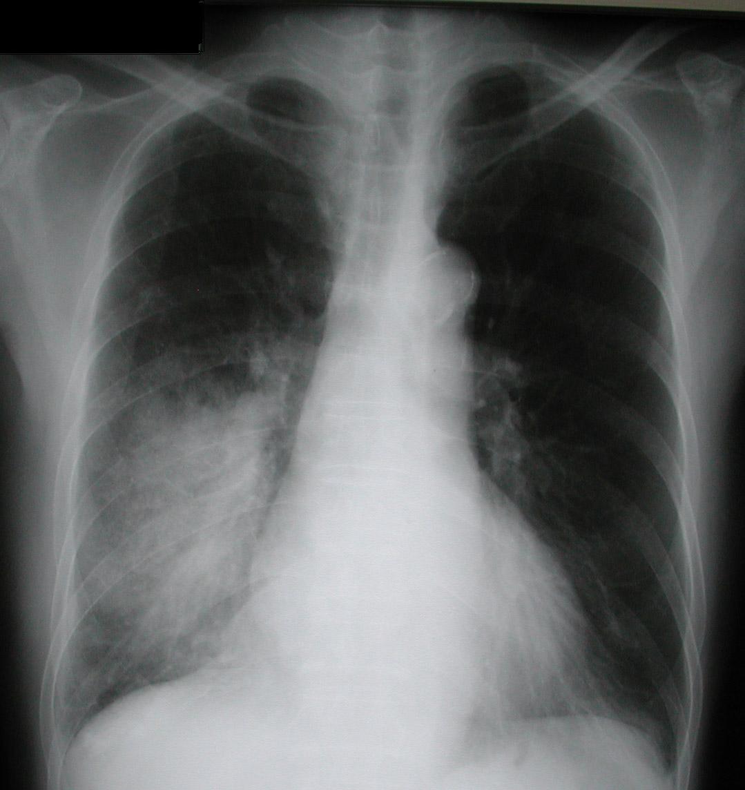 Circuito De Monza : Pneumonia inflamação experimental dos pulmões