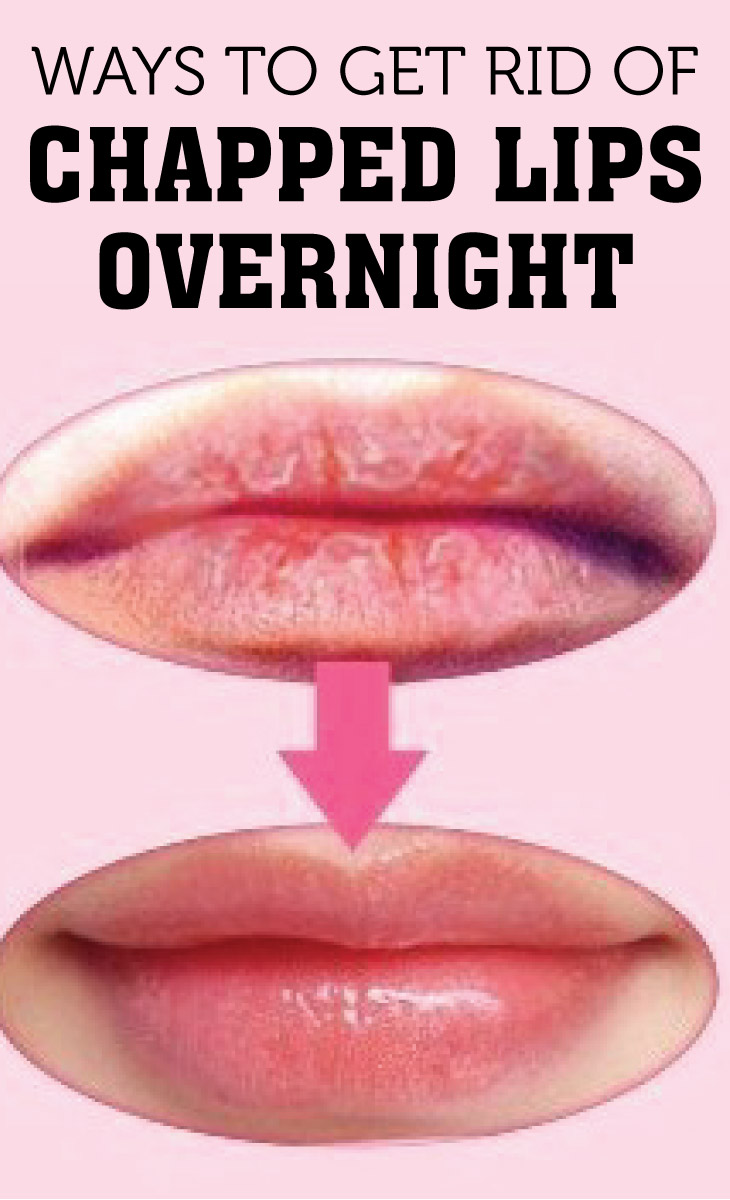 Ways To Get Rid Of Chapped Lips Overnight Cute Parents