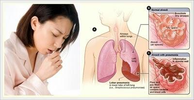 Cara Penularan Dan Gejala Penyakit TBC Paru