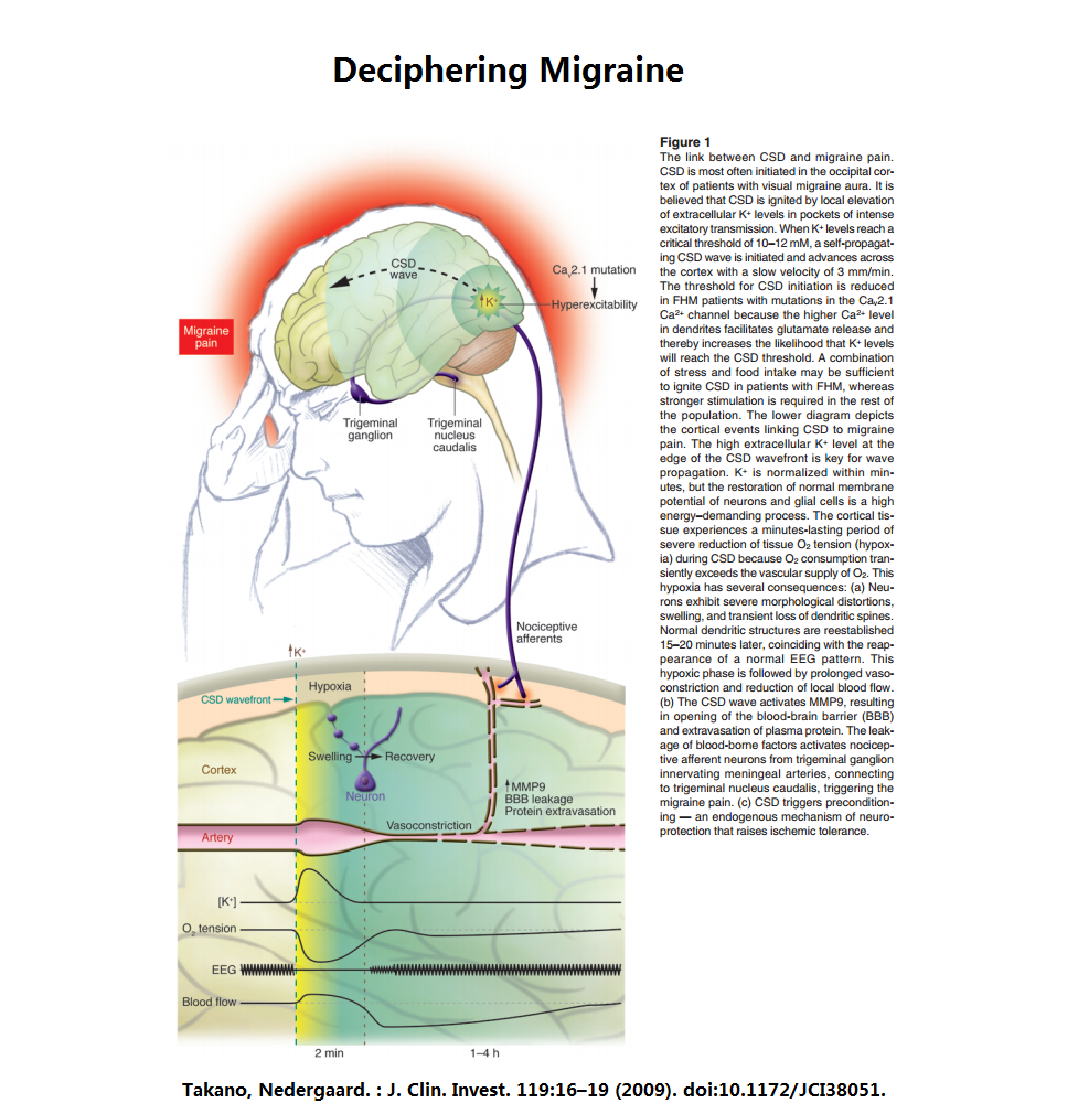 the prevalence and main causes of migraines in america
