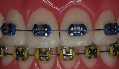 Elastik ligatürler model üzerinde (renkli diş teli)
