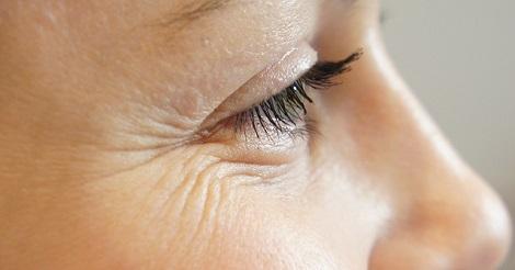 وصفات طبيعية للتخلص من التجاعيد حول العين في 15 دقيقة فقط