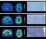 El estudio del cerebro de unas monjas desvela claves del Alzheimer