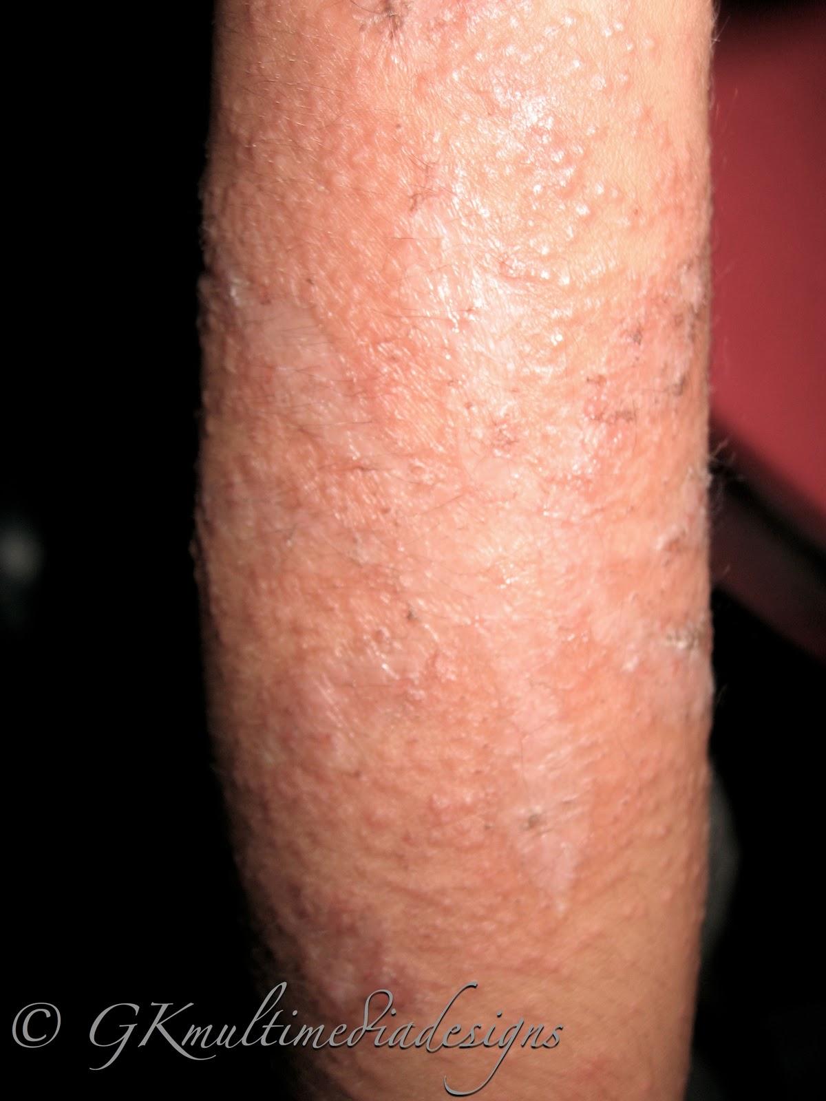 henna allergy symptoms makedes
