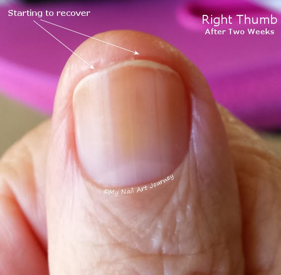 Badly Damaged Nails on The