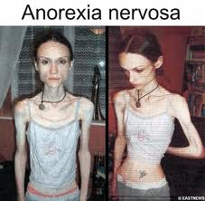 how to become anorexia nervosa tips