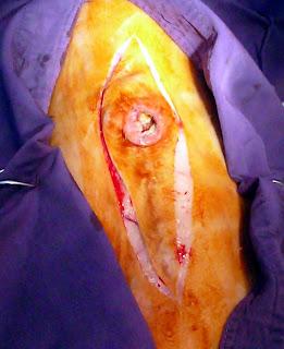 cirugia oncologica