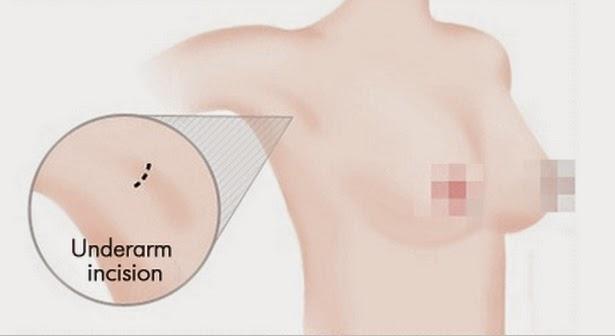 Lokasi sayatan operasi plastik payudara artis Korea