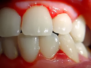Interpretação de Sonhar com Dente
