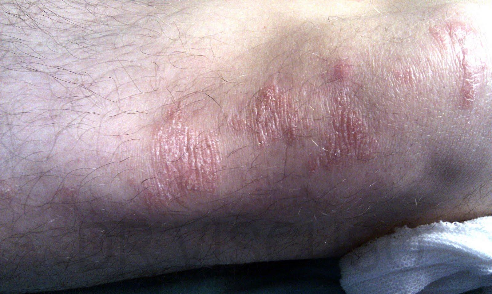 Fotos de psoriasis en el pene