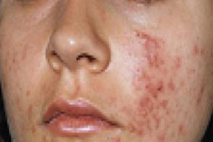 5 WORST ACNE MOST FEARED IN THE WORLD
