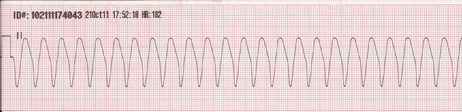 Float Nurse: EKG Rhythm Strip Quiz 1 Ventricular Tachycardia Rhythm Strip