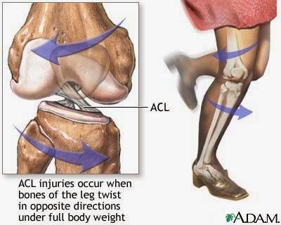 Masalah ACL berpunca dari pergerakan tulang kaki ke arah yang berlawanan